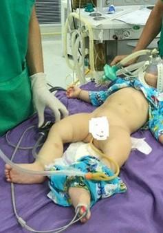Điều trị lồng ruột cấp ở trẻ em