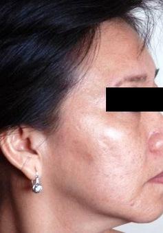 Nâng cơ, trẻ hóa da, giảm béo không phẫu thuật
