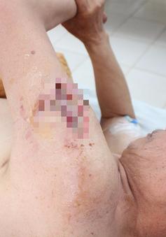 Người đàn ông bị nhiễm trùng nặng do tự tiêm mật gấu vào tay