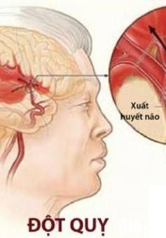 Dự phòng đột quỵ não như thế nào?