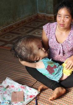Sự sống mong manh của bé gái Ê đê có chiếc đầu to gấp 4 người bình thường