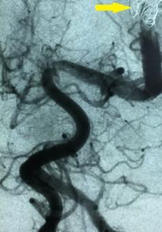 Điều trị thành công bé 2 tháng tuổi với dị dạng mạch máu não nguy hiểm