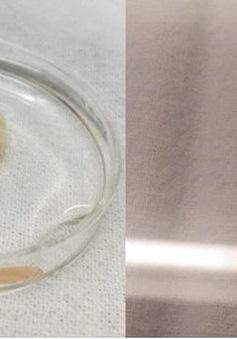 Lần đầu tiên lưu trữ mô buồng trứng trên người thành công