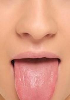 Nguyên nhân không ngờ gây ngứa lưỡi
