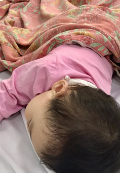 Gia tăng trẻ mắc bệnh tay chân miệng