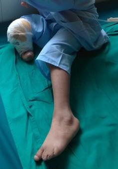 Nguy hiểm: một ca sinh tại nhà, trẻ bị cụt chân vì hội chứng hiếm gặp