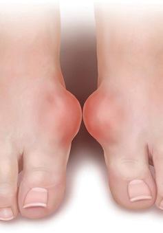 Từ A - Z những điều cần biết về bệnh Gout