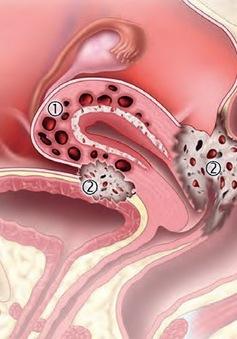 Điều trị lạc nội mạc tử cung trong vô sinh