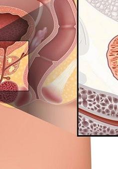 Những đối tượng này dễ mắc ung thư tuyến tiền liệt
