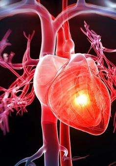 Dinh dưỡng và luyện tập cho bệnh nhân tim mạch