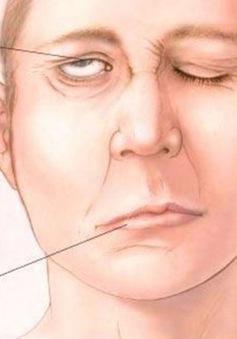 10 dấu hiệu của đột quỵ không thể không biết