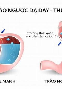 Viêm họng do trào ngược dạ dày thực quản, bạn đã biết?