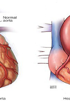 Hội chứng nguy hiểm Marfan – mối đe dọa cho tim và máu
