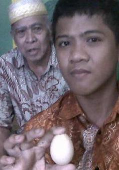 """Ly kỳ câu chuyện cậu bé người Indonesia """"đẻ"""" trứng trong hai năm"""