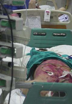 Một bệnh nhân mắc thủy đậu biến chứng đang nguy kịch
