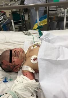 Hai mẹ con bỏng nặng do bình gas mini phát nổ