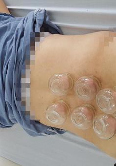 Điều trị đau cột sống thắt lưng bằng giác hơi kết hợp xoa bóp bấm huyệt