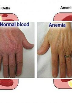 Thiếu máu và những lưu ý về dinh dưỡng