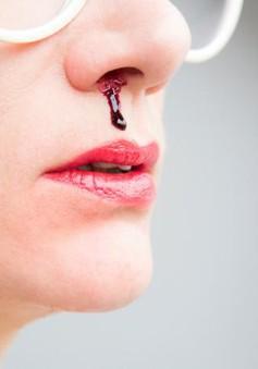 Nên làm gì khi bị chảy máu mũi?