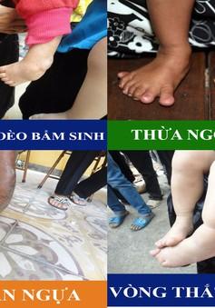 Phẫu thuật nhân đạo cho người dị tật bàn chân và cổ chân tại Quảng Ninh