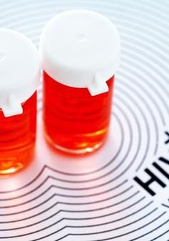 Phát hiện kháng thể mới điều trị và chống nhiễm HIV
