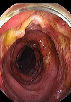 Nữ bệnh nhân bị nhiễm trùng máu do viêm ruột nặng