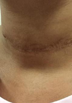 Cảnh báo tình trạng sử dụng thuốc nam chữa bướu cổ