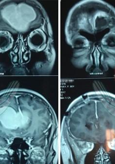 Trầm cảm, mất ngủ: Phát hiện u màng não trán