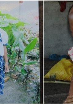 Bé gái bị tạt axit trong vụ đánh ghen của mẹ ruột