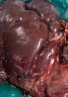 Bé gái 2 tuổi mang khối u gan ác tính Sarcoma mạch máu hiếm gặp