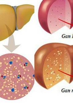 Top 4 nguyên nhân gây gan nhiễm mỡ và cách phòng tránh