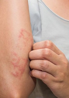 Các loại bệnh có thể lây nhiễm từ hồ bơi