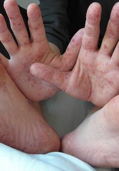 Malaysia nỗ lực kiểm soát dịch chân tay miệng đang tiếp tục bùng phát