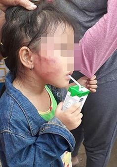 Tạm giữ cô giáo hành hạ trẻ mầm non ở Bình Chánh, TP.HCM