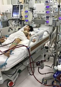Ứng dụng kỹ thuật oxy hóa máu bằng màng ngoài cơ thể cứu hai bệnh nhi nguy kịch