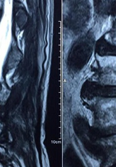 Nguyên nhân và triệu chứng bệnh thoát vị đĩa đệm