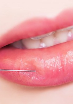 Sự thật ít ai biết của việc tiêm filler môi làm đẹp