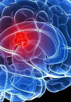 Tìm ra loại hóa chất có thể tiêu diệt tế bào ung thư não