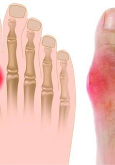 Nguy cơ tử vong cao khi bị đau tim đối với bệnh nhân gout