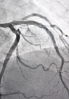 Cứu sống hai bệnh nhân nhồi máu cơ tim cấp