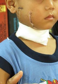 TP.HCM: Bé trai bị cánh quạt công nghiệp chém rách mặt