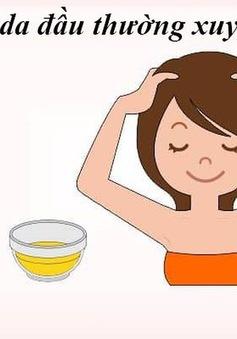 Mách nhỏ, 10 cách trị rụng tóc từ thiên nhiên hiệu quả nhất