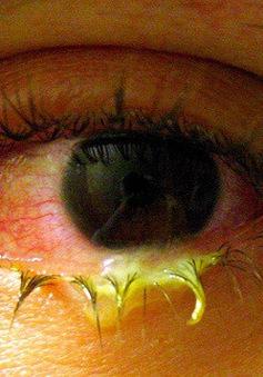 Những điều cần biết về bệnh đau mắt hột