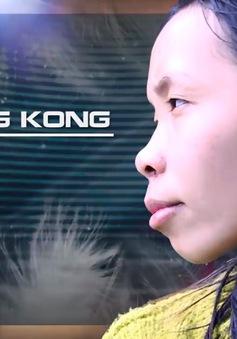 """Change Life - Thay đổi cuộc sống: Cô nàng """"King Kong"""" thay đổi ra sao sau phẫu thuật thẩm mĩ?"""