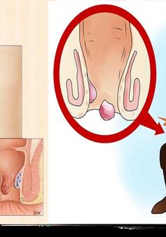 Khắc phục bệnh trĩ sau sinh