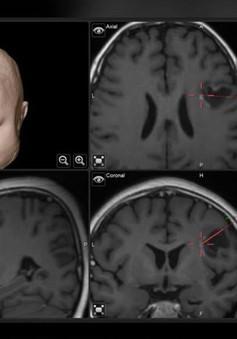 Làm cách nào phát hiện u não ở trẻ em?