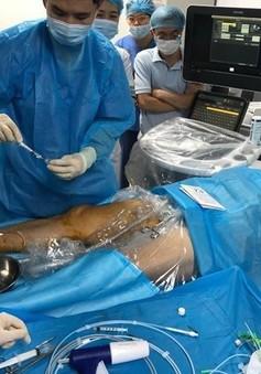 Điều trị suy tĩnh mạch nông chi dưới bằng bơm keo sinh học
