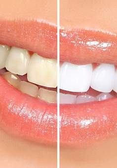 Tự làm kem đánh răng siêu trắng trong tích tắc tại nhà