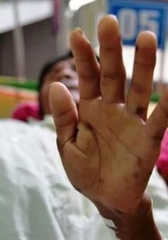 Quảng Ngãi: Thông tin mới về hội chứng viêm da dày sừng bàn tay, bàn chân