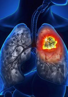 10 dấu hiệu cảnh báo ung thư phổi